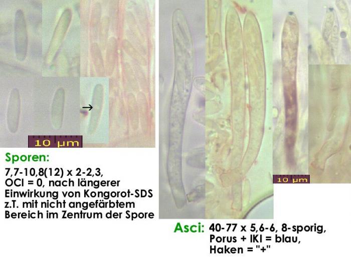 Pyrenopeziza-petiolaris-120517-MCol-01