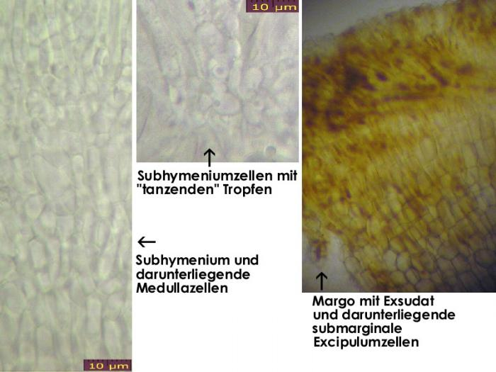 Pyrenopeziza-petiolaris-120517-MCol-04