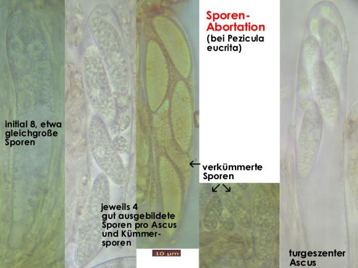 Sporen-Abortation-Pezicula-MCol-01