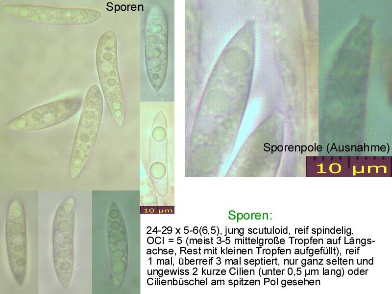Hymenoscyphus-salicellus-121105-MCol-01
