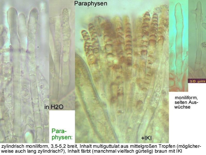 Hymenoscyphus-salicellus-121105-MCol-03