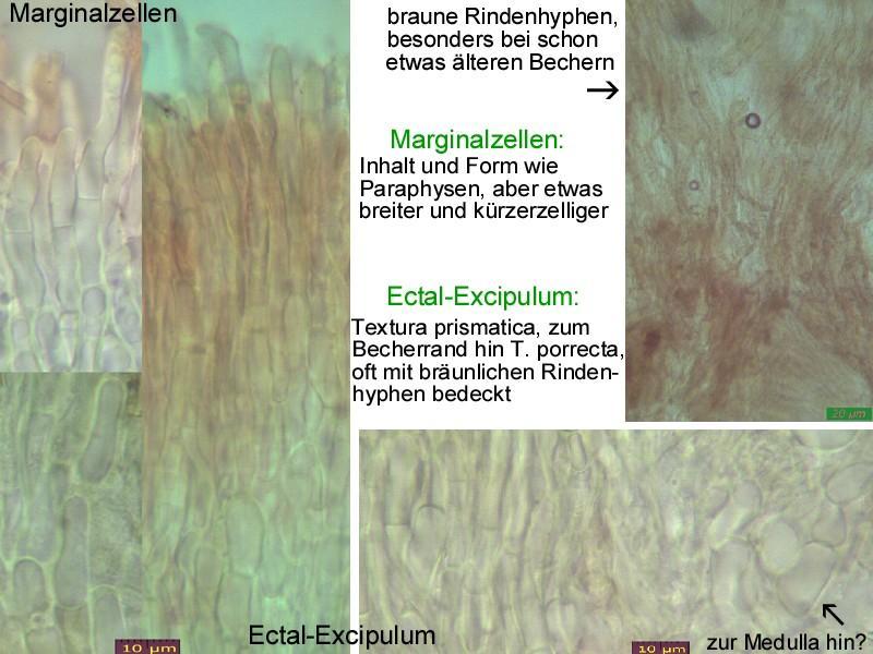 Hymenoscyphus-salicellus-121105-MCol-04