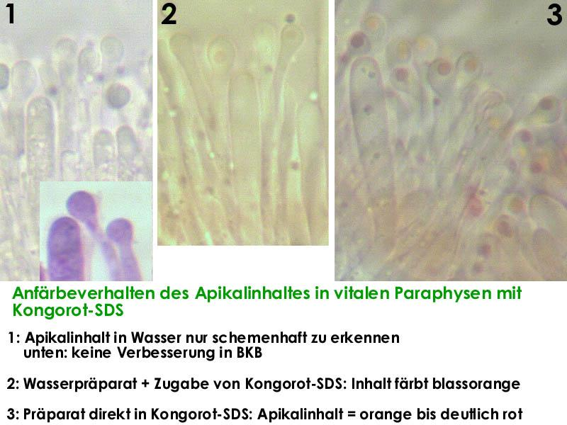 Orbilia-P-Apikalinhalt-MCol-01JJ