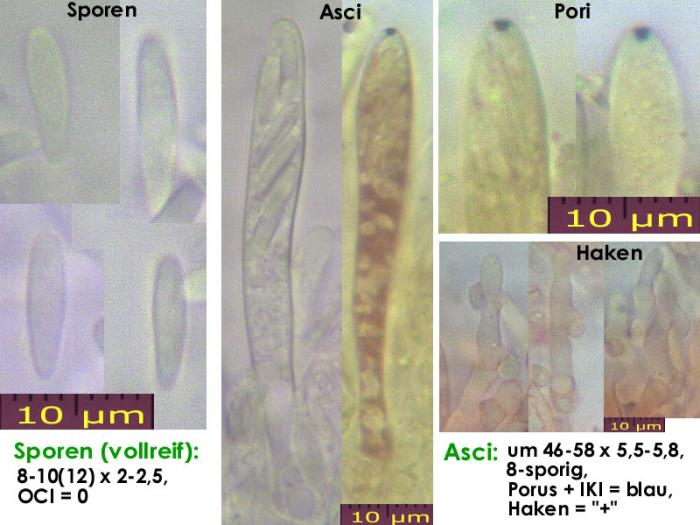 Pyrenopeziza-petiolaris-130520-MCol-01JJ
