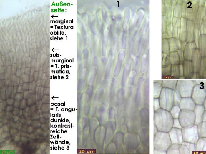 Pyrenopeziza-petiolaris-130520-MCol-03JJ