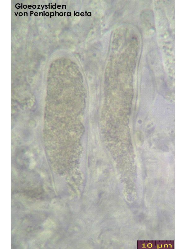 Zystiden-Gloeozystiden-Pen-laeta-131203-MCol-01JJ