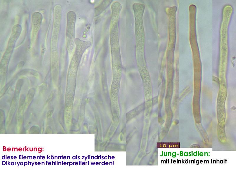Dacrymyces-lacrymalis-130113-JAM-MCol-03JJ