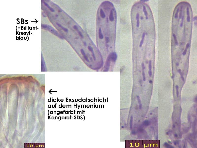 Orbilia-vinosa-131214-MCol-02JJ