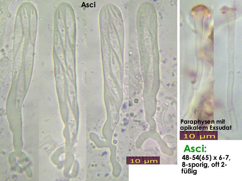 Orbilia-vinosa-121227-MCol-02JJ