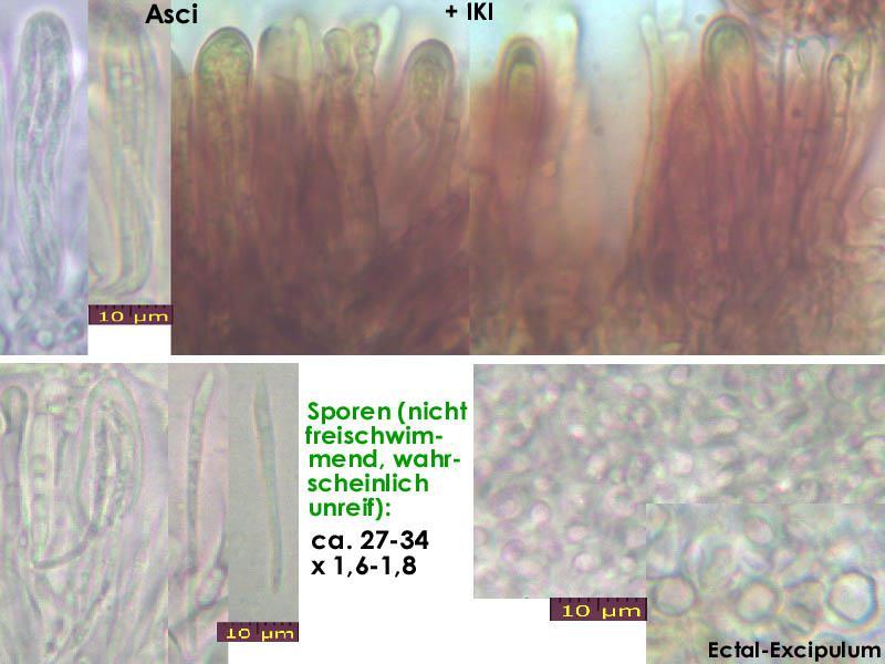 Bacidina-delicata-150101-TR-MCol-01JJ