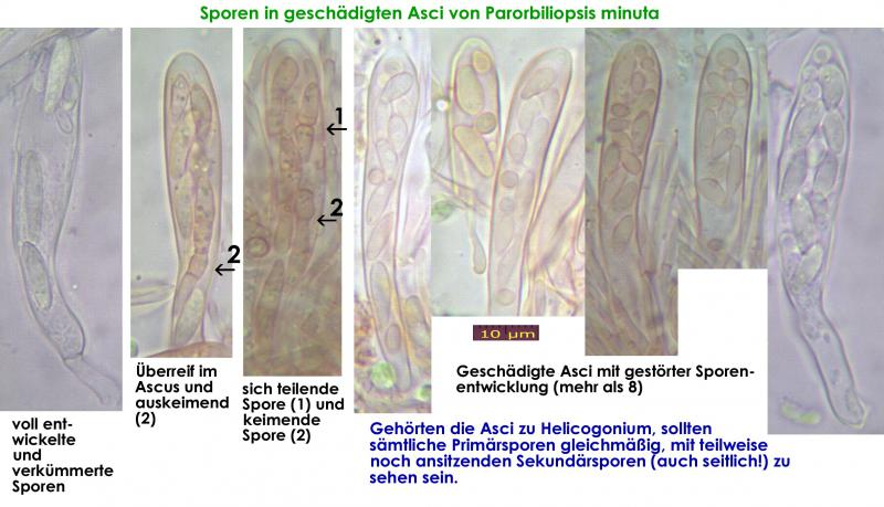 Hyaloscypha-intacta-Sporenentwicklung