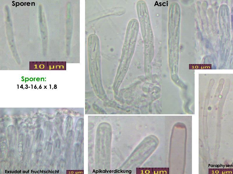 Orbilia-vinosa-160111-MCol-01JJ