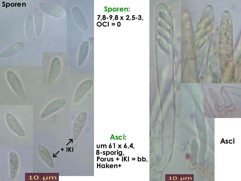 Mollisia-pyrenopezizoides-160616-FP294-MCol-01JJ