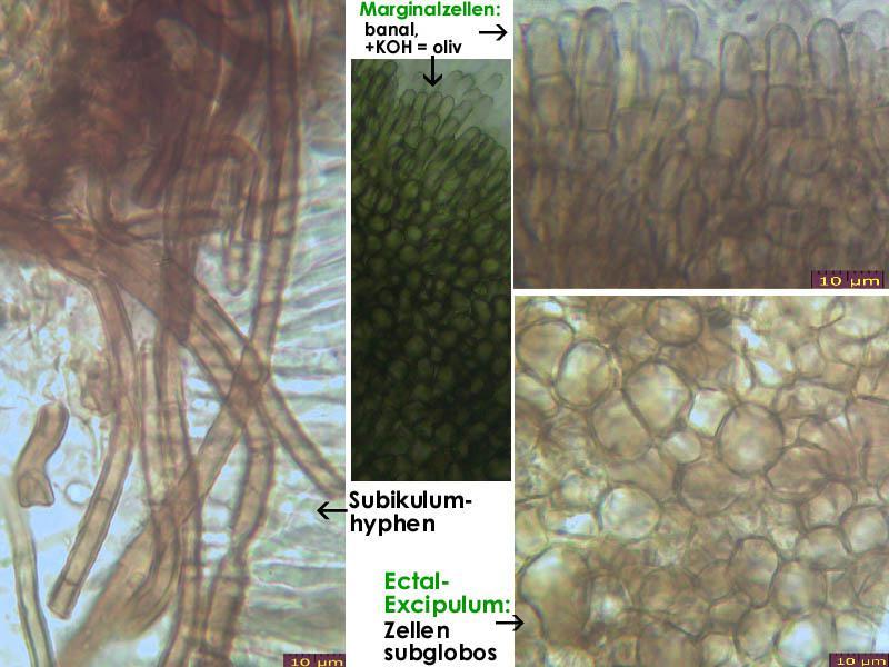 Mollisia-pyrenopezizoides-160616-FP294-MCol-02JJ