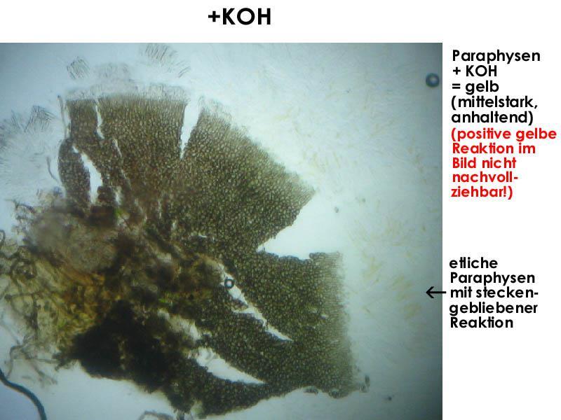 Mollisia-pyrenopezizoides-160616-FP294-MCol-03JJ