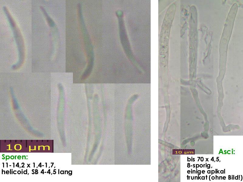 Orbilia-aurantiorubra-170102-TR-MCol-01JJ