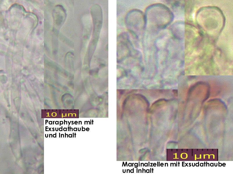 Orbilia-aurantiorubra-170102-TR-MCol-02JJ