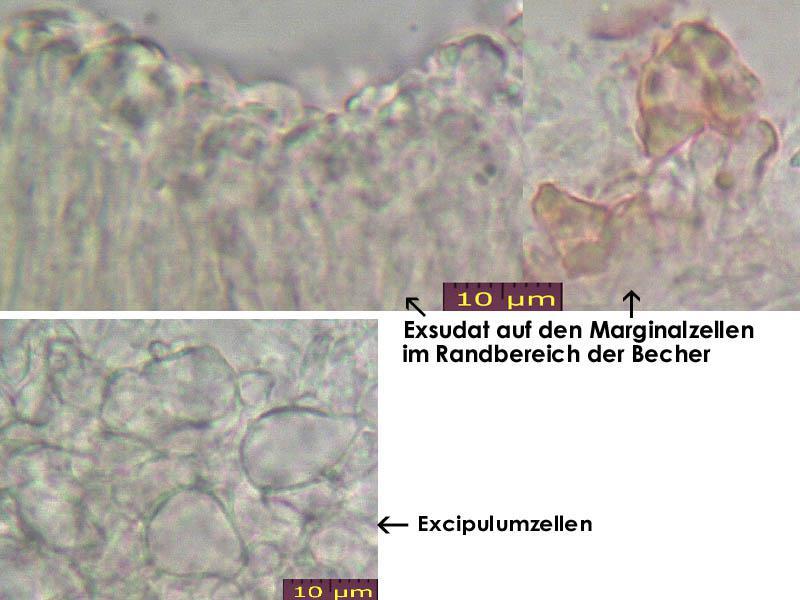 Orbilia-aurantiorubra-170102-TR-MCol-03JJ