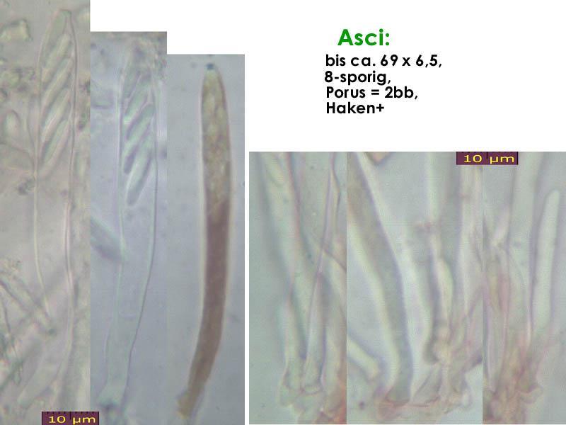 Mollisia-albogrisea-(piceae)-160730-FP301-MCol-02JJ