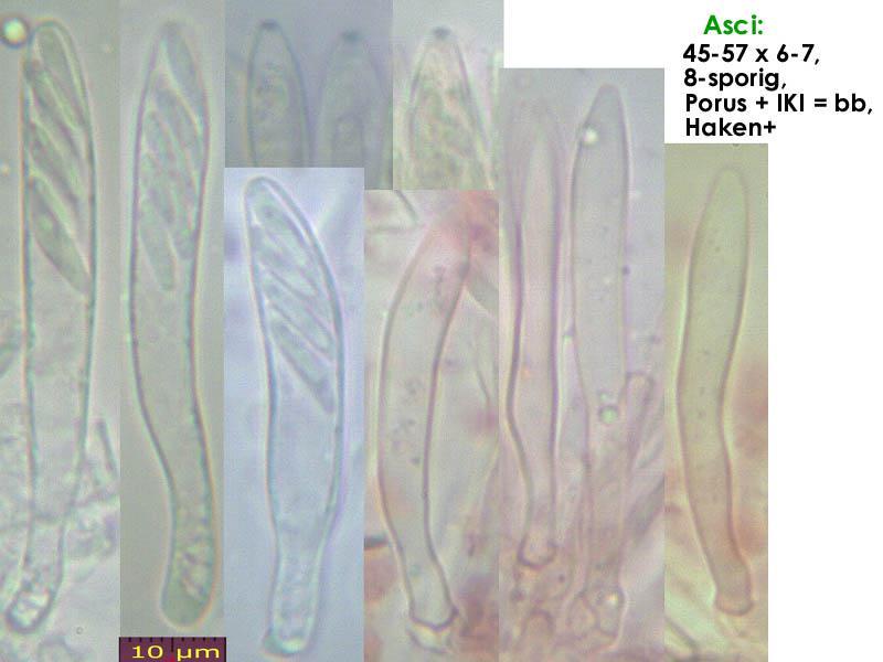 Pyrenopeziza-spec-(caulicol-hairless)-170630-FP402-MCol-02JJ