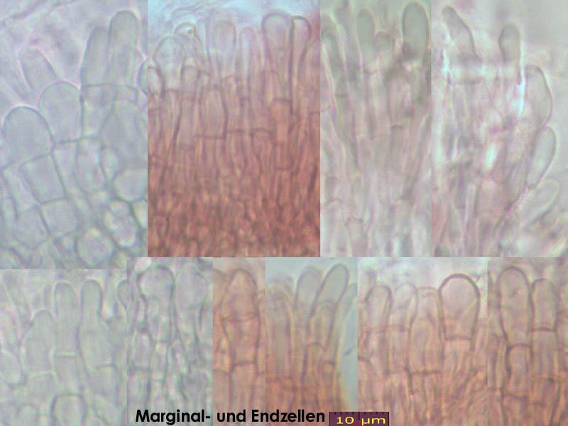 Pyrenopeziza-spec-(caulicol-hairless)-170630-FP402-MCol-04JJ