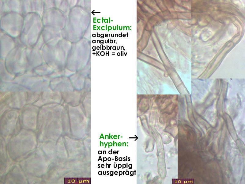 Pyrenopeziza-spec-(caulicol-hairless)-170630-FP402-MCol-05JJ