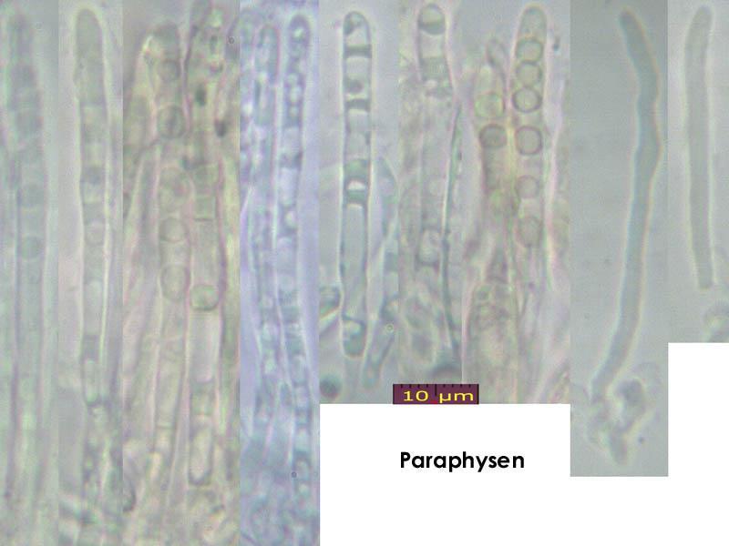 Pyrenopeziza-dilutella-170630-FP401-MCol-03JJ