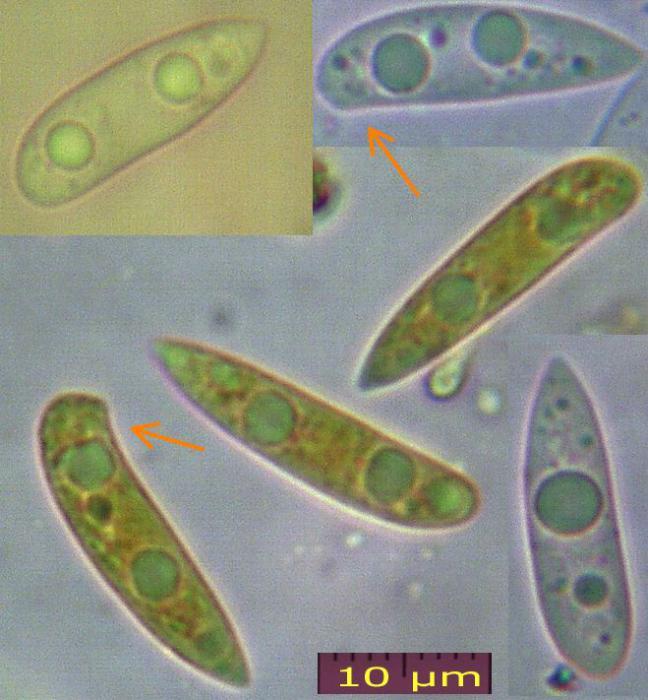 Scutuloide-Sporen-091115