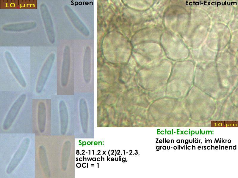 Pyrenopeziza-depressuloides-cf-(Cirsium)-180723-MCol-01JJ