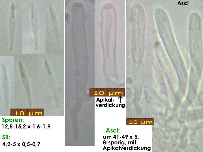 Orbilia-vinosa-170715-MCol-01JJ