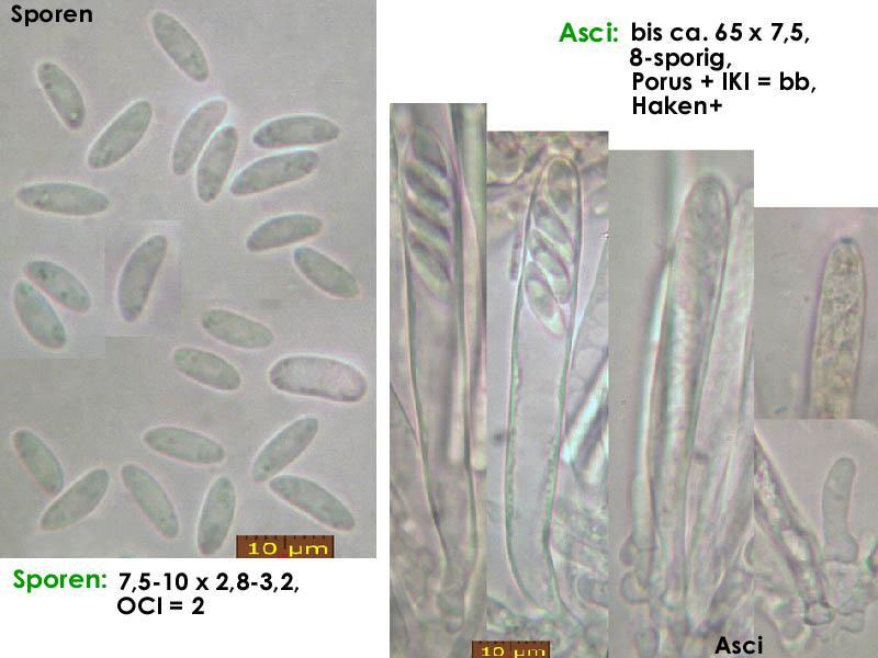 Mollisia-olivaceocinerea-180921-MSch-iw037-MCol-01JJ