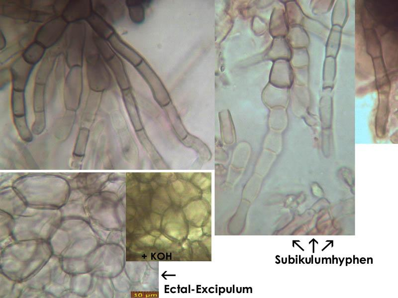 Mollisia-ulicis-(with-exudate)-200404-HaBe-MCol-05JJ