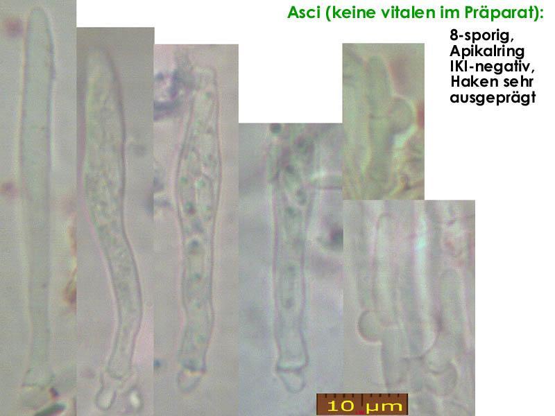 Pyrenopeziza-caespiticia-210205-MCol-02JJ