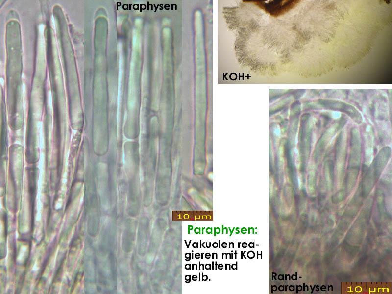 Mollisia-scopiformis-200321-MCol-02