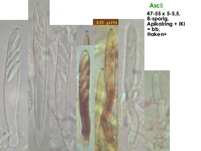 Cistella-grevillei-210519-iw113-MCol-02JJ