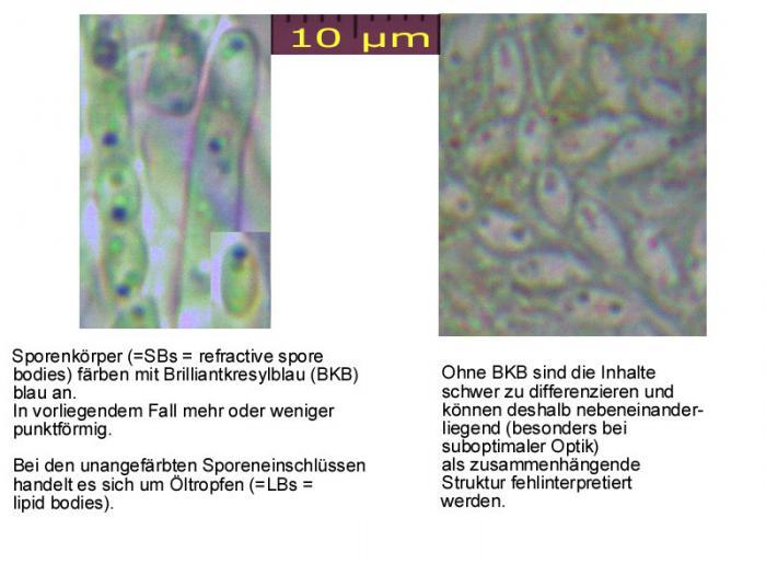 Orbilia-SBs-Orbilia-coccinella