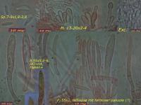 Calycina-conorum-090304-MCol-01