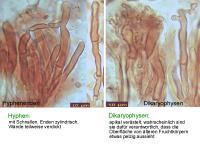 Dacrymyces-tortus-110130-MCol-03
