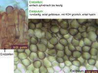 Mollisia-ventosa-110519-MCol-03