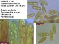 Bisporella-citrina-100116-2-MCol-01