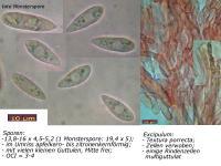 Hymenoscyphus-rokebyensis-091018-MCol-02