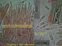 Hymenoscyphus-Sophienpflege-cf-090816-MCol-02