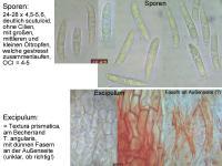 Hymenoscyphus-suspectus-101031-MCol-01