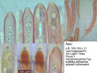 Hymenoscyphus-suspectus-101031-MCol-02