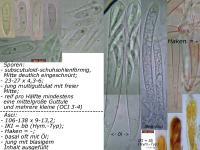 Hymenoscyphus-syringaecolor-091103-MCol-01