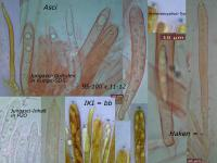 Hymenoscyphus-vacini-090924-MCol-01
