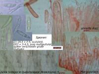Hymenoscyphus-vacini-090924-MCol-03