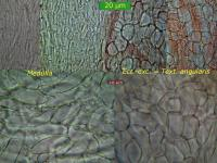Hymenoscyphus-vernus-090418-MCol-02