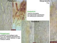 Hymenoscyphus-pseudoalbidus-110708-MCol-03