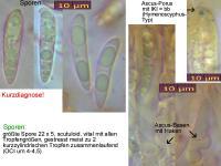 Hymenoscyphus-pseudoalbidus-110624-MCol-01